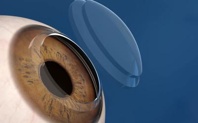 Cross-Linking corneale
