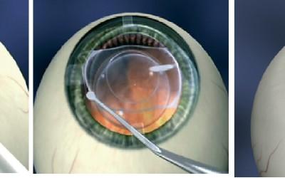 ICL – Le lenti impiantante chirurgicamente