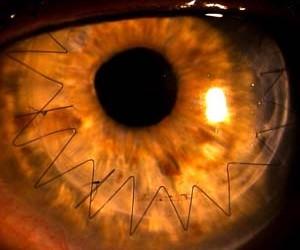 Trapianto corneale
